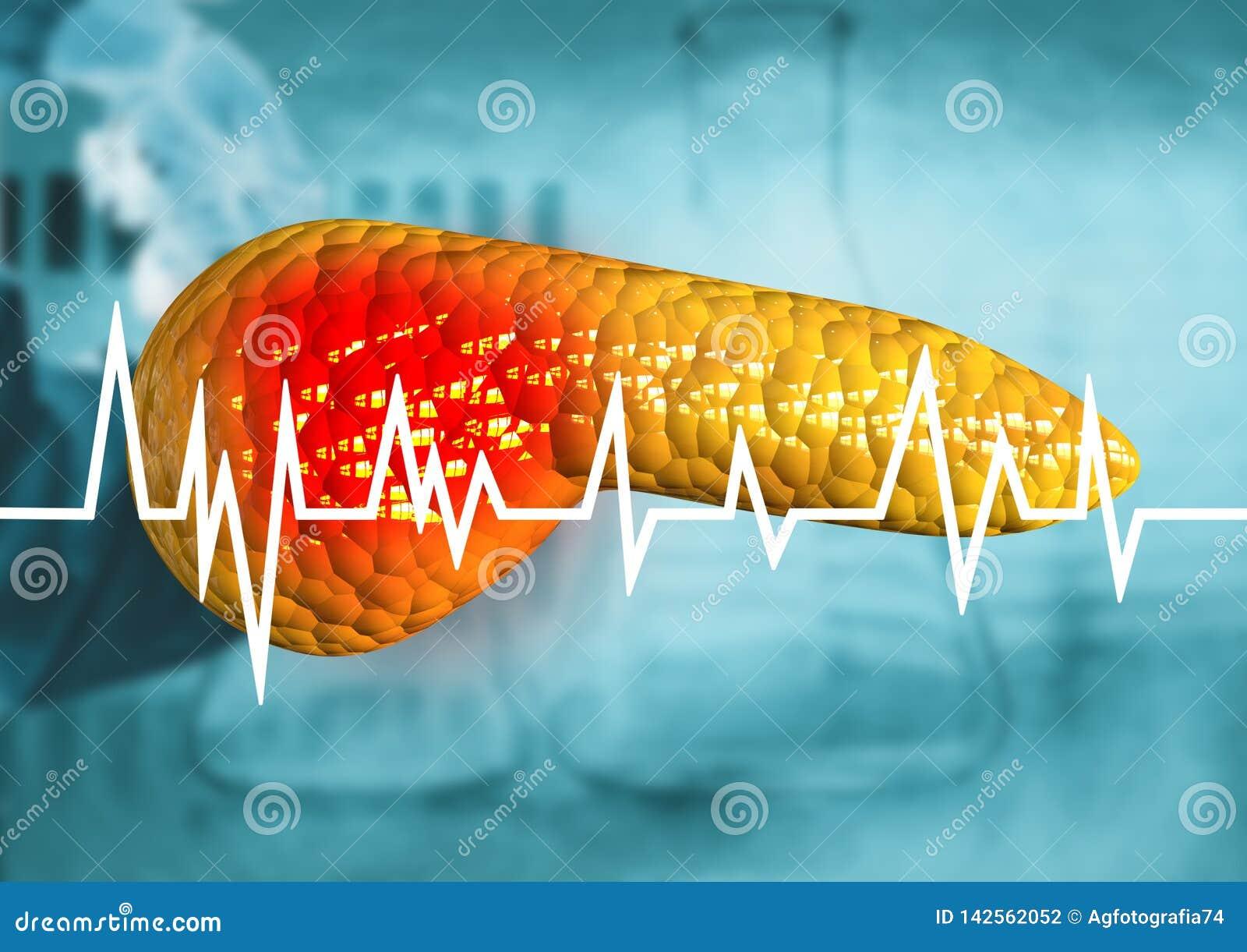 Πάγκρεας, όργανο ανθρώπινων σωμάτων με τη διάγνωση του καρκίνου, pancreatitis, σοβαρές ασθένειες