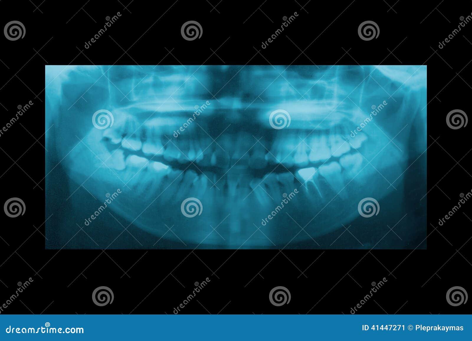 Πανοραμική οδοντική ακτίνα X για Orthodontics