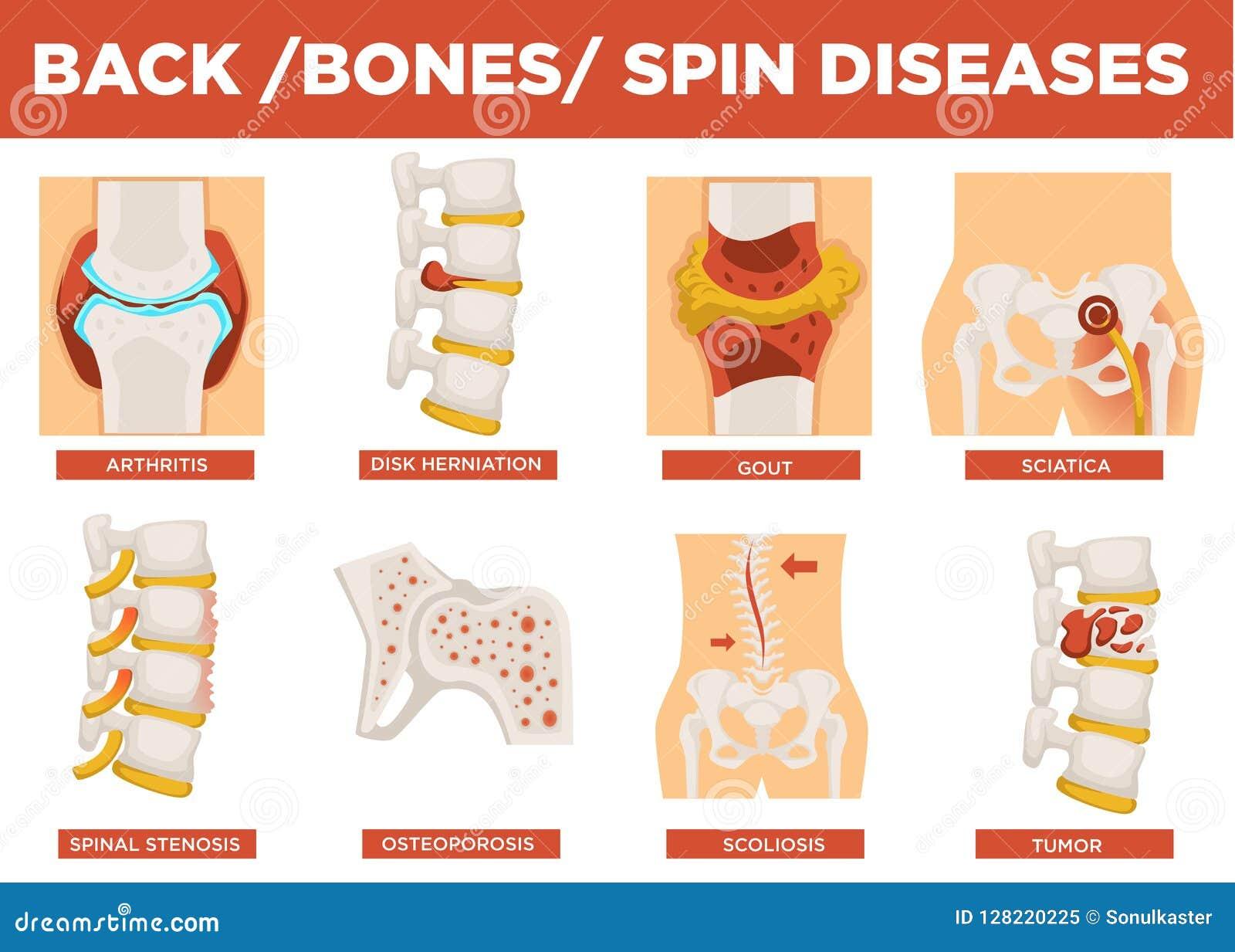 Πλάτη, κόκκαλα και ανθρώπινο διάνυσμα εξήγησης ασθενειών περιστροφής