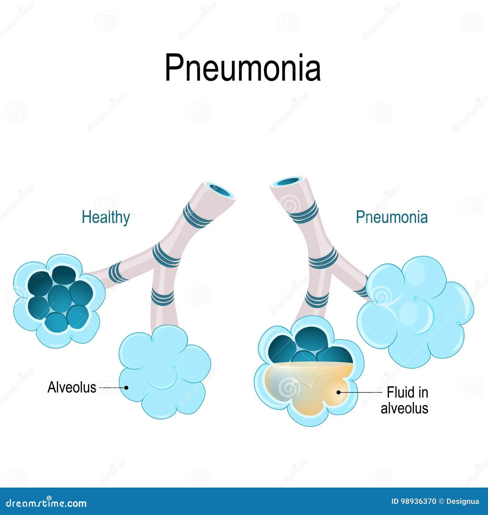 πνευμονία Η απεικόνιση παρουσιάζει κανονικά και μολυσμένα φατνία