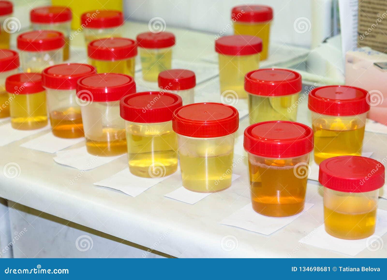Προετοιμασία των δειγμάτων ούρων στο εργαστήριο στο νοσοκομείο για τη μελέτη Ειδικές λουρίδες δοκιμής για την εξέταση ούρων