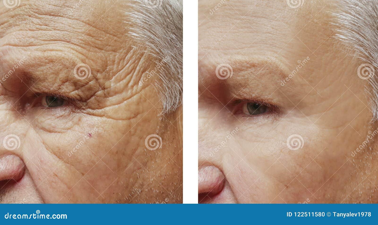 Προσώπου ηλικιωμένο πρόσωπο θεραπείας ρυτίδων μετώπων ατόμων υπομονετικό πριν και μετά από τις διαδικασίες