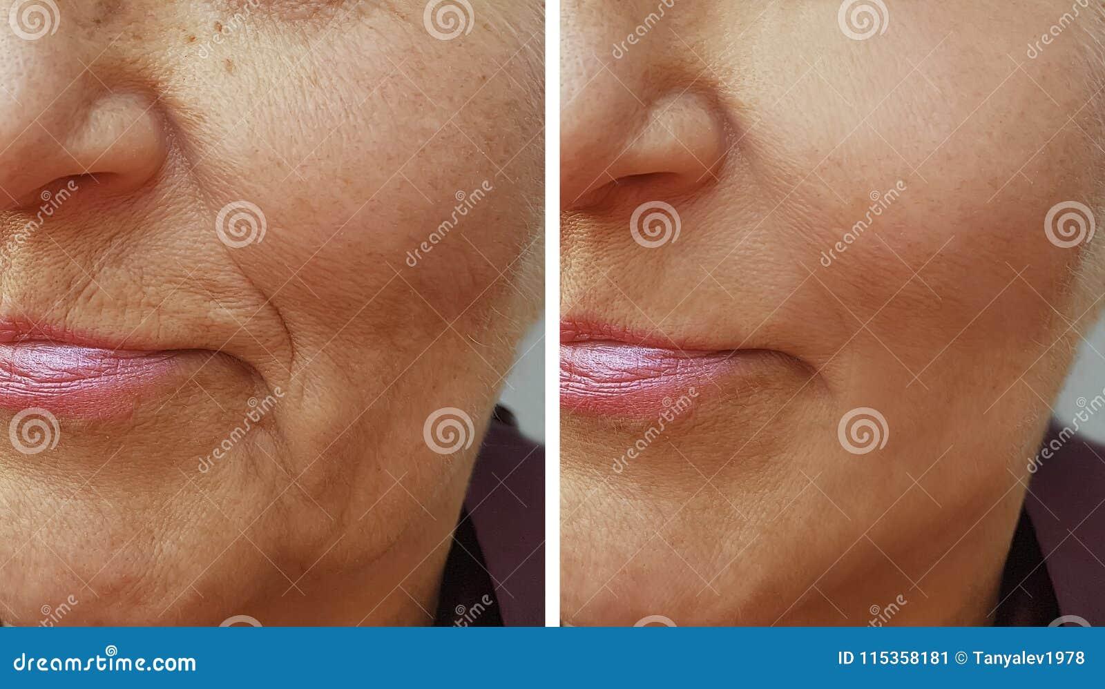 Πρόσωπο μιας ηλικιωμένης γυναίκας ρυτίδων πριν και μετά