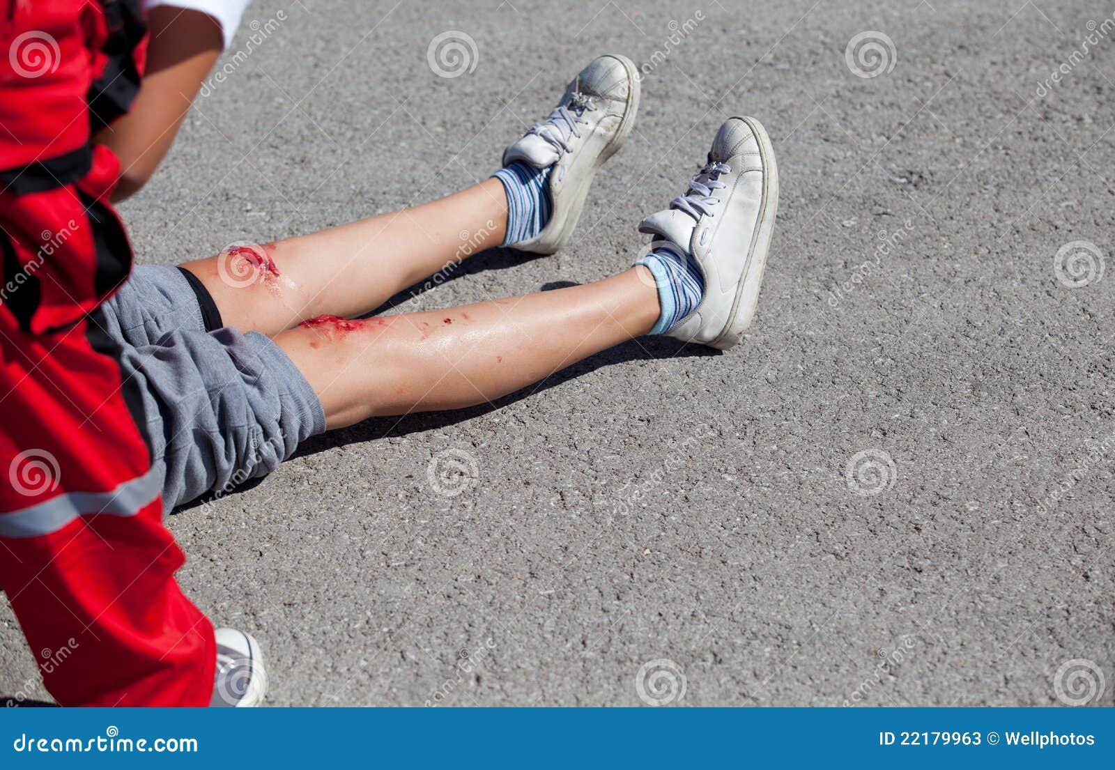 πόδια τραυματισμών
