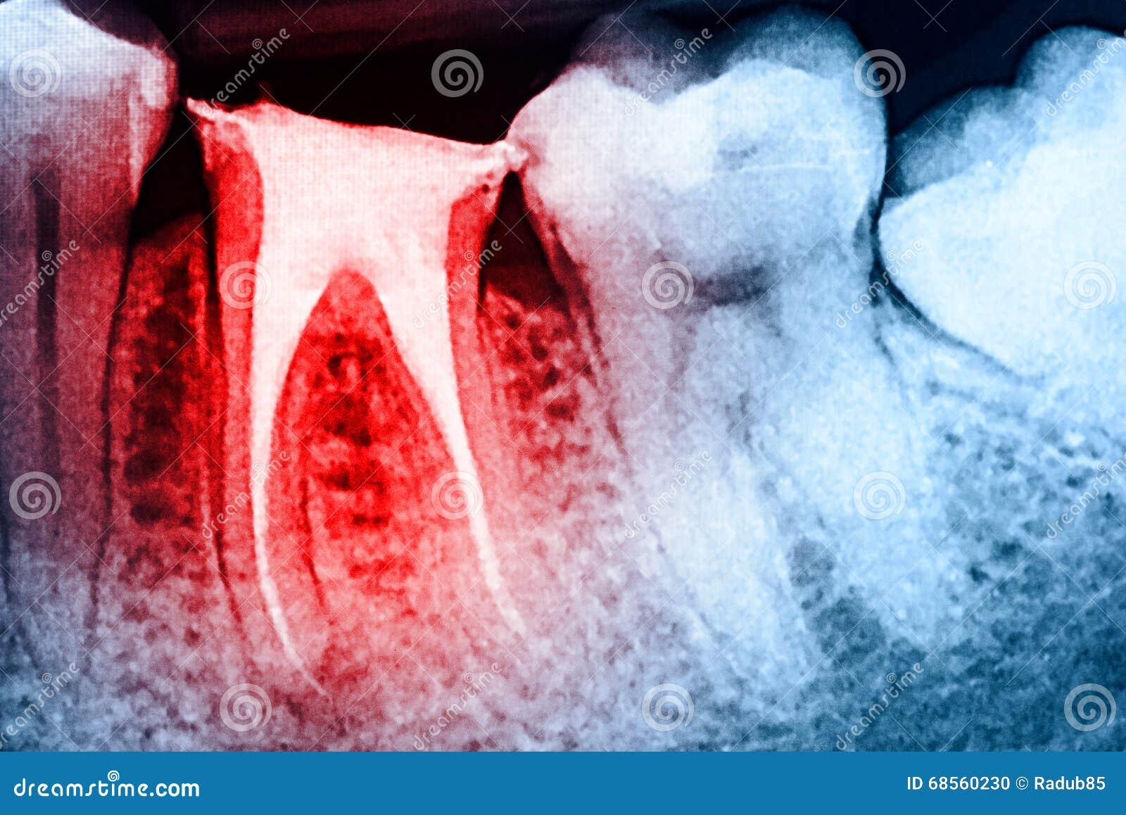 Πλήρες Obturation των συστημάτων καναλιών ρίζας στα δόντια