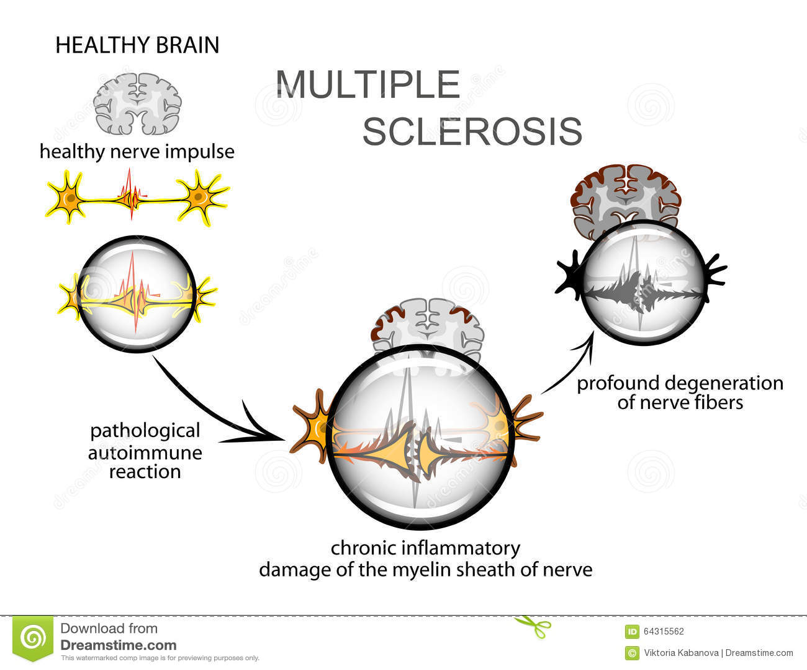 σκλήρυνση κατά πλάκας νευρολογία