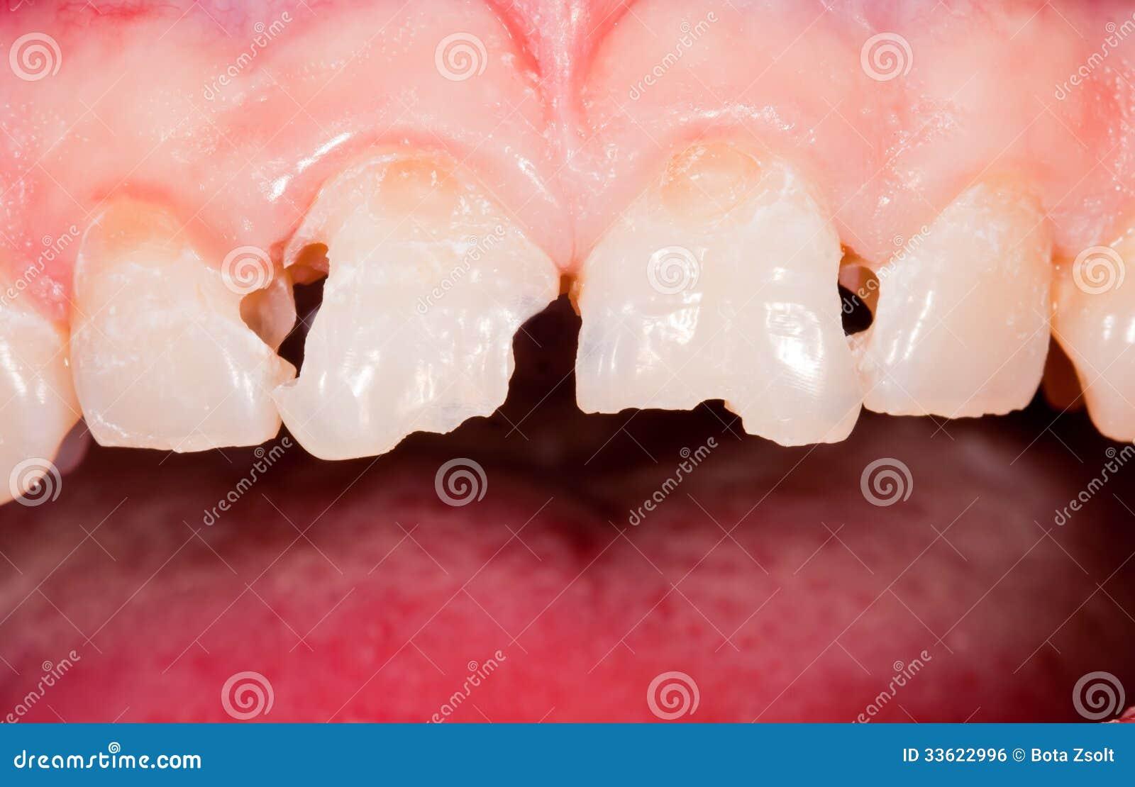Σπάσιμο δοντιών