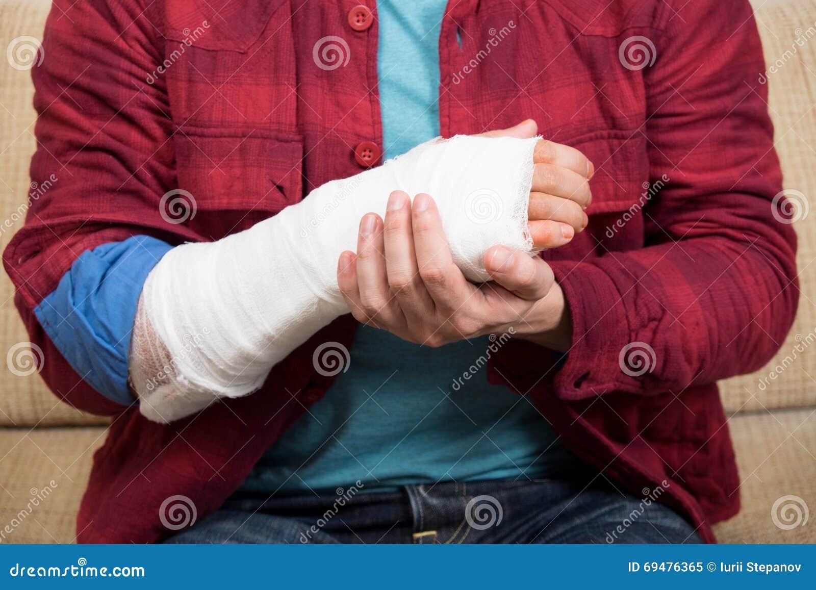 σπασμένο χέρι
