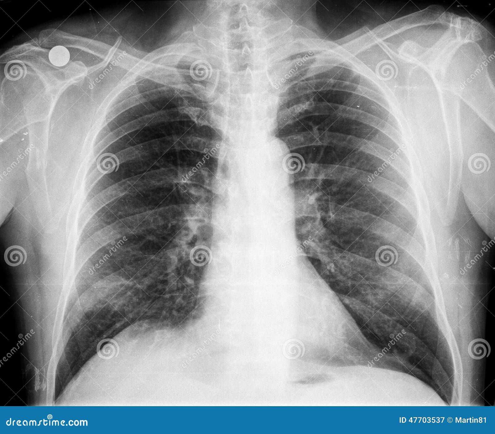 Στήθος ακτίνας X