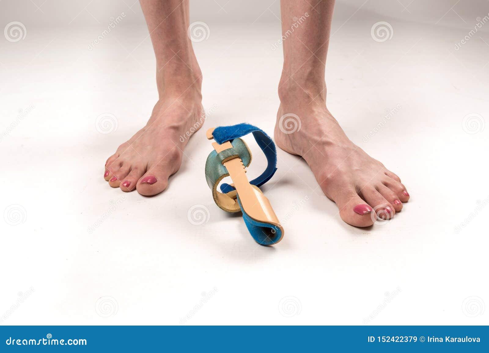 Σταθεροποιώντας όρθωση για τη διόρθωση του μεγάλου toe στα πόδια γυναικών όταν hallux απομόνωσε το valgus, 2 πόδια, κινηματογράφη