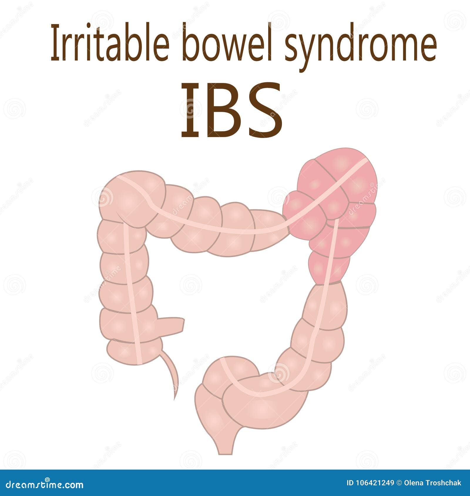 Σύνδρομο IBS ευερέθιστων εντέρων σε ένα μεγάλο έντερο