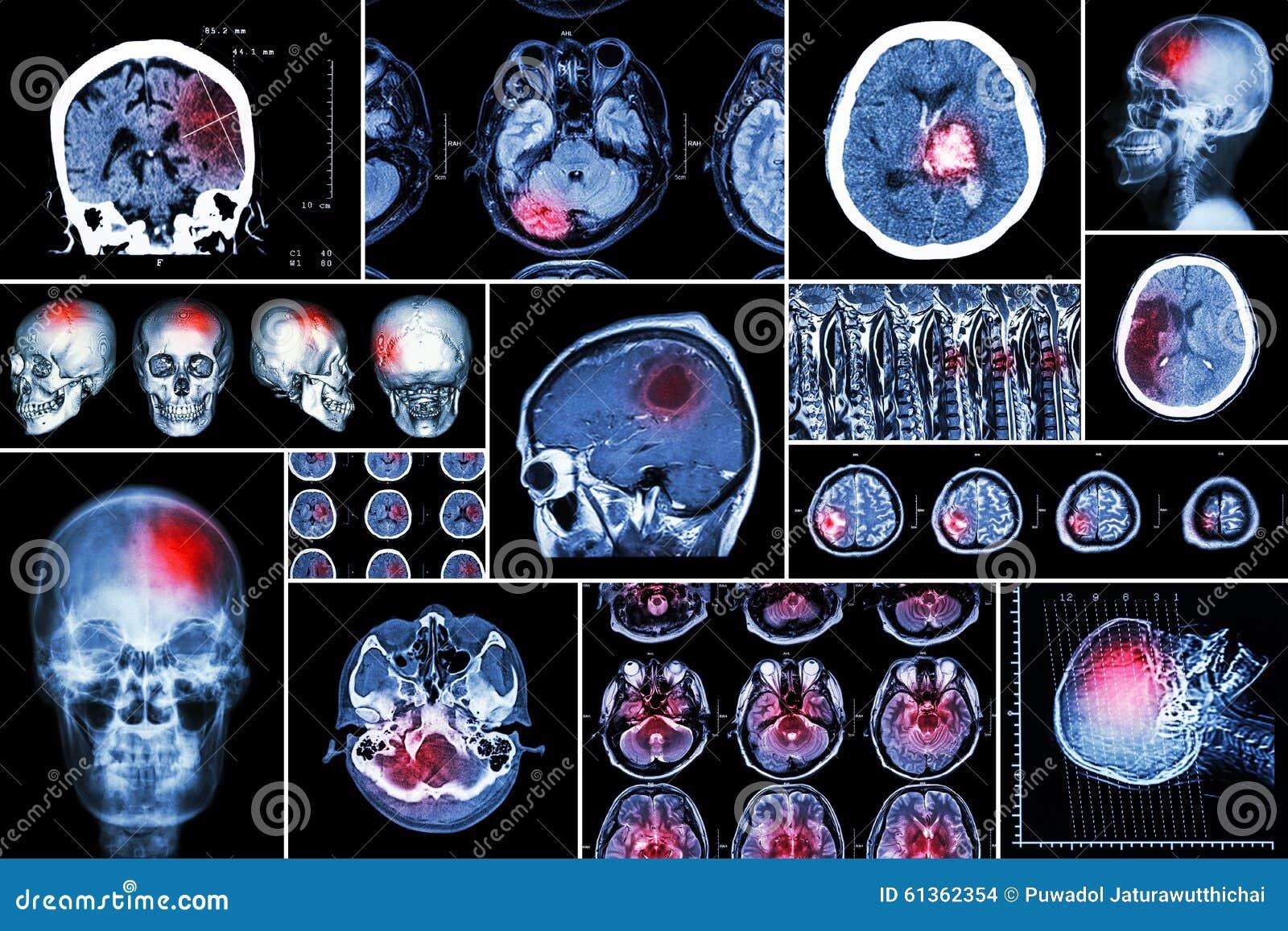 Σύνολο, συλλογή της ασθένειας εγκεφάλου (εγκεφαλικό έμφραγμα, Hemorrhagic κτύπημα, όγκος στον εγκέφαλο, herniation δίσκων με το ν