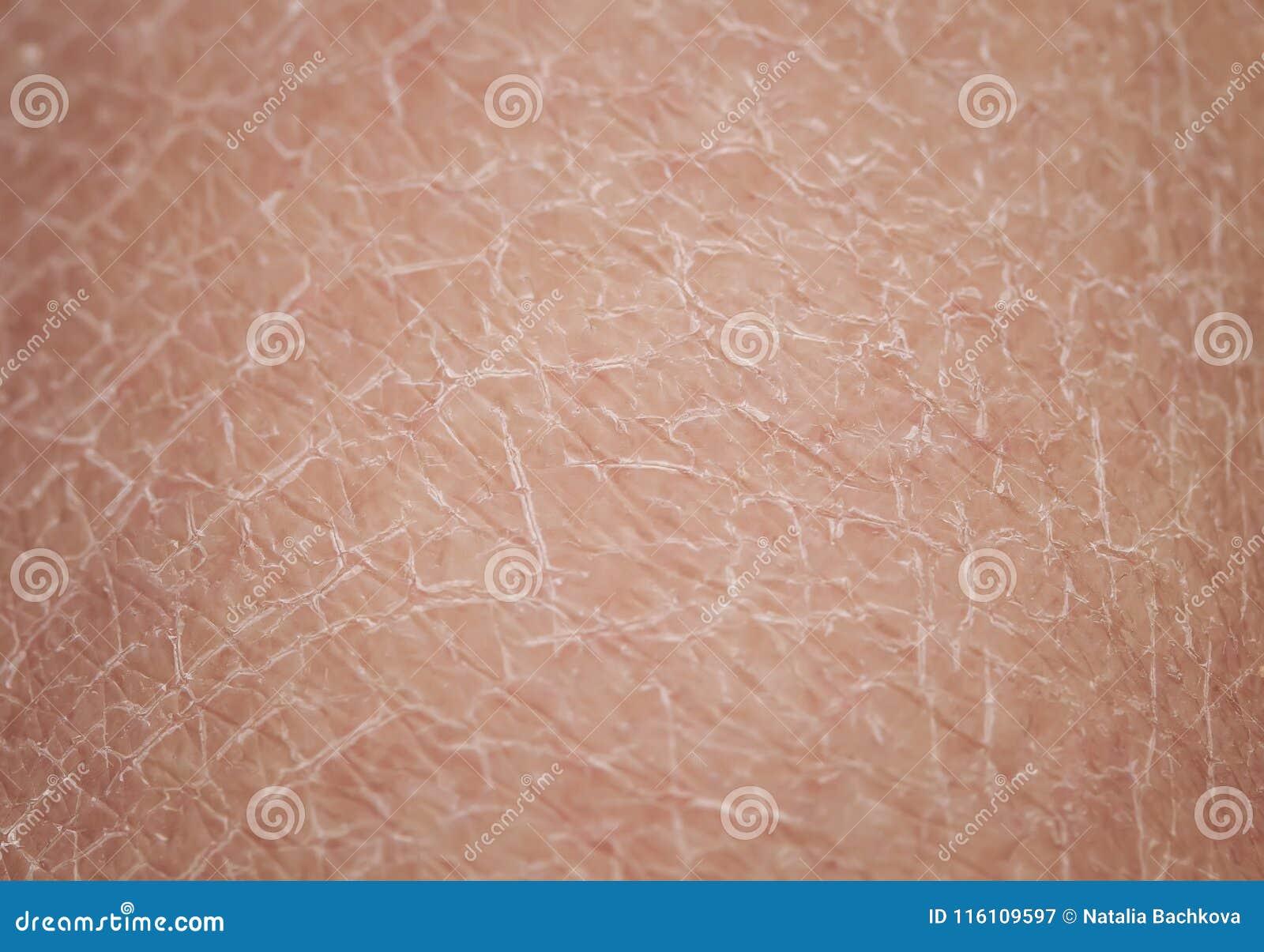 53edaff179bf Σύσταση του ανθρώπινου δέρματος μεγάλη με τα δερματολογικά προβλήματα της  ξηρότητας και του ραγίσματος