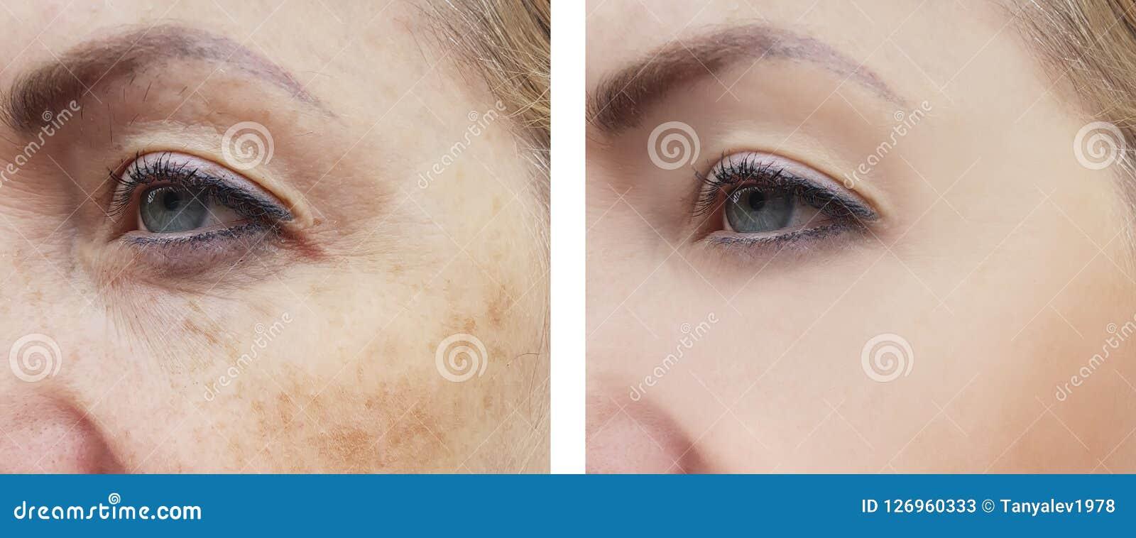 Το πρόσωπο γυναικών ζαρώνει την υγεία θεραπείας διορθώσεων διαφοράς χρώσης πριν και μετά από τις διαδικασίες