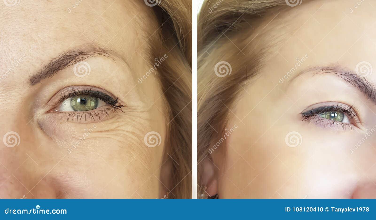 Το πρόσωπο ζαρώνει πριν και μετά