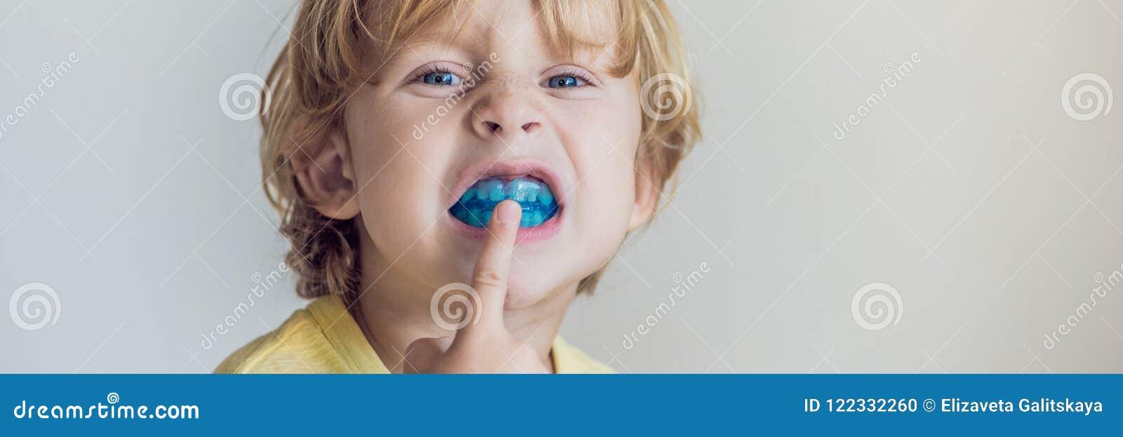 Το τρίχρονο παλαιό αγόρι παρουσιάζει myofunctional εκπαιδευτή για να φωτίσει τη συνήθεια στοματικής αναπνοής Οι βοήθειες εξισώνου
