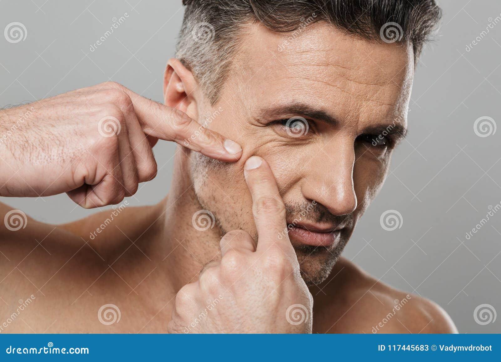 Το όμορφο ώριμο άτομο γυμνό φροντίζει τις συμπιέσεις δερμάτων του έξω ένα σπυράκι