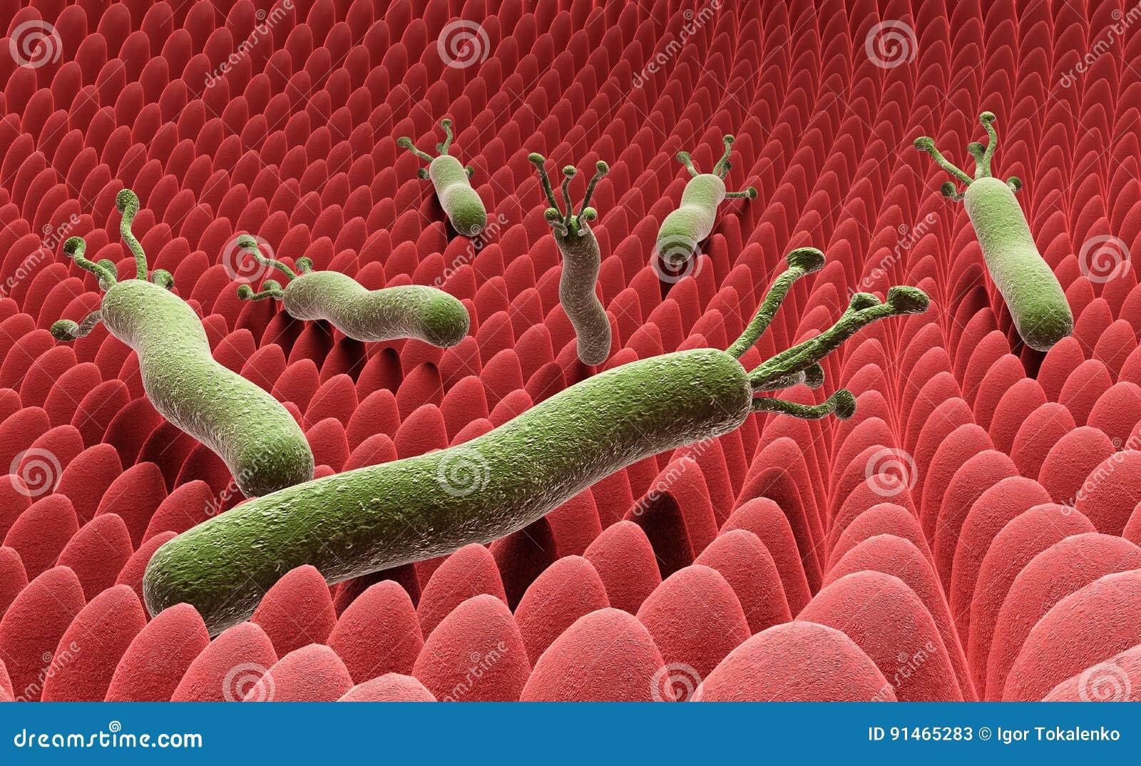 Το pylori Helicobacter στην επιφάνεια του στομαχιού τρισδιάστατου δίνει στο W
