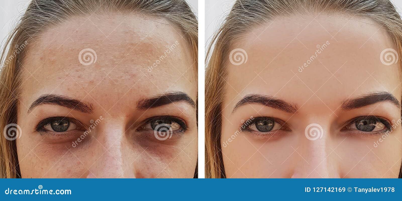 Τσάντα κοριτσιών ματιών κάτω από τα μάτια πριν και μετά από τις καλλυντικές διαδικασίες επεξεργασίας