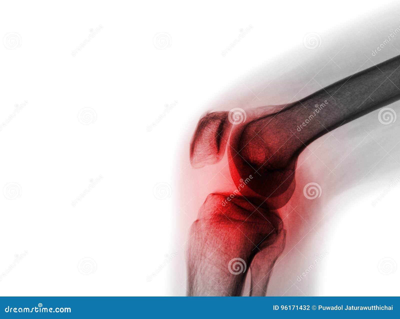 Των ακτίνων X ένωση γονάτων ταινιών με την αρθρίτιδα & x28  Gout, Rheumatoid αρθρίτιδα, σηπτική αρθρίτιδα, γόνατο οστεοαρθρίτιδας