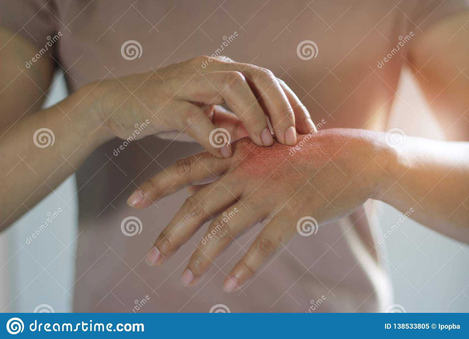 Υγειονομική περίθαλψη και ιατρική έννοια Το θηλυκό γρατσούνισμα φαγουρίζει σε ετοιμότητα της, αιτία να φαγουρίσει από τις ασθένει
