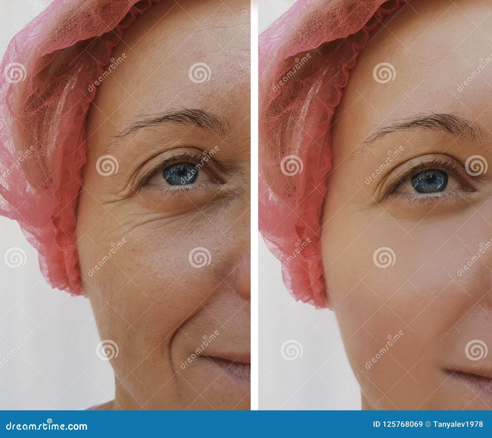 Υπομονετική δερματολογία ρυτίδων γυναικών προσώπου πριν και μετά από τις καλλυντικές διαδικασίες αντι-γήρανσης