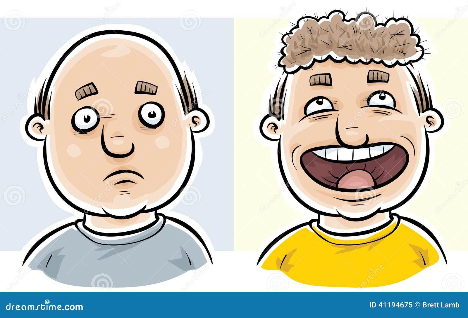 Φαλακρός πριν και μετά