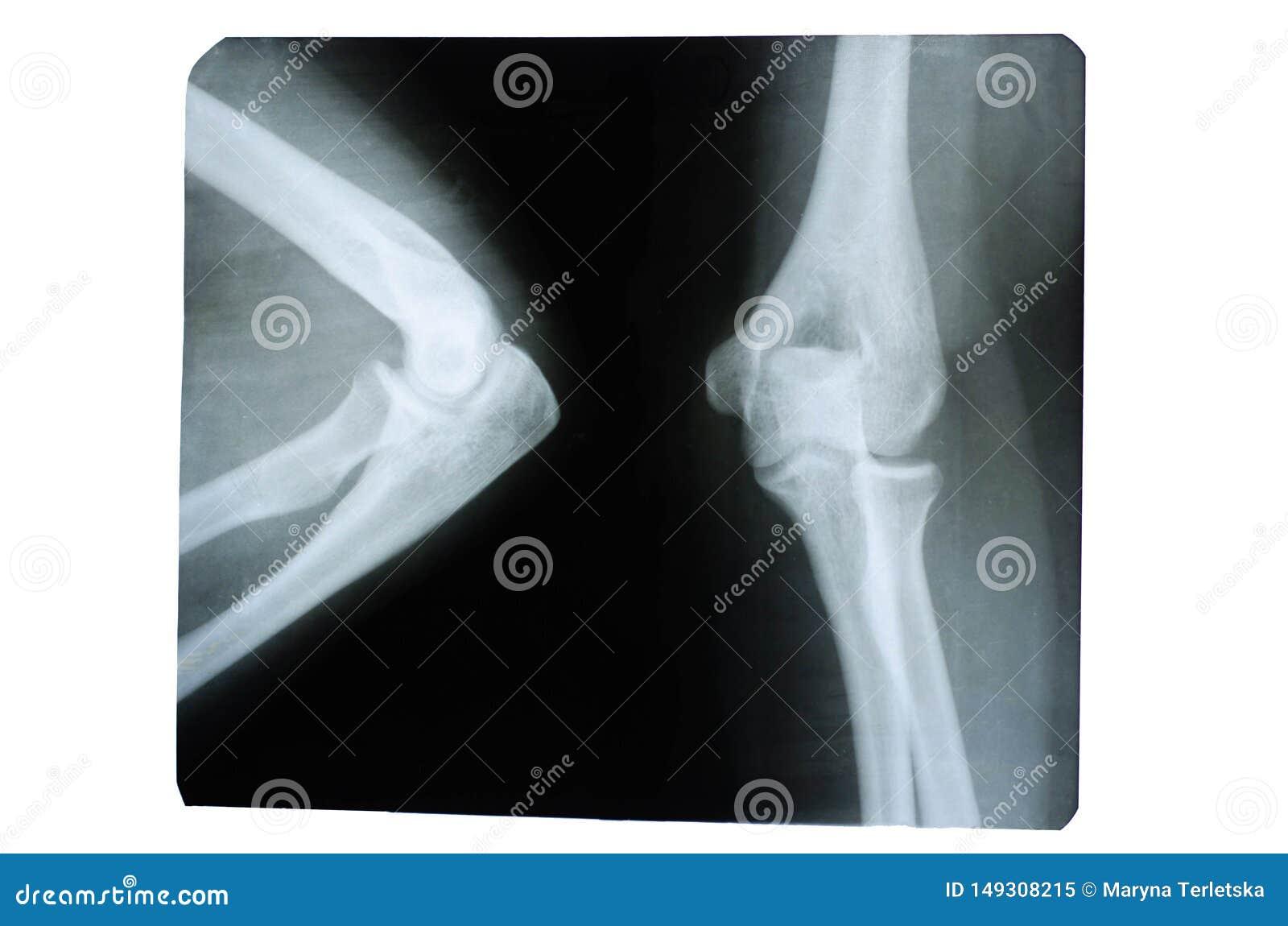 Φωτογραφία μιας ανθρώπινης ακτίνας X μιας ένωσης στην περιοχή αγκώνων