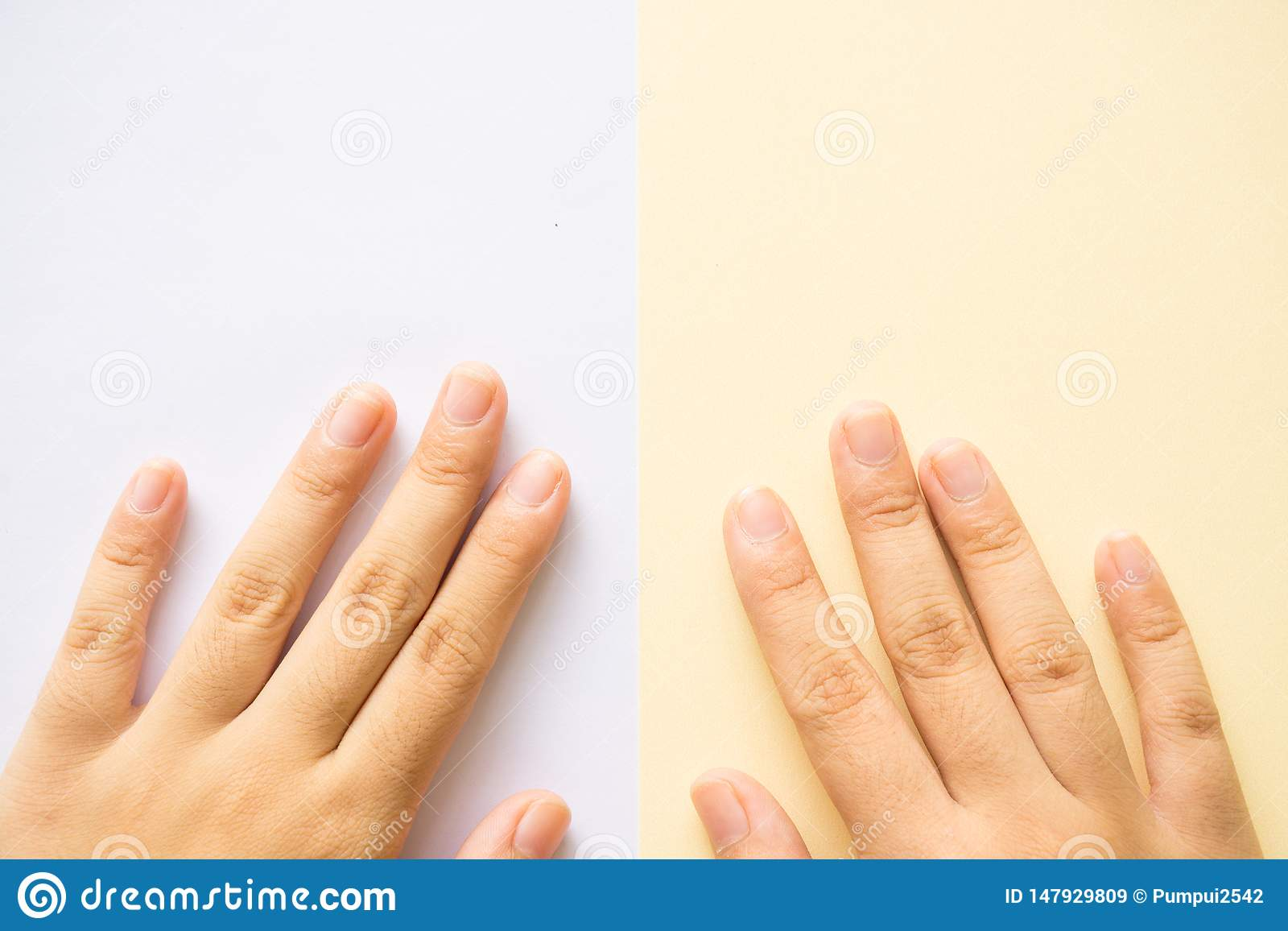 Χέρι στο άσπρο υπόβαθρο και το κίτρινο υπόβαθρο