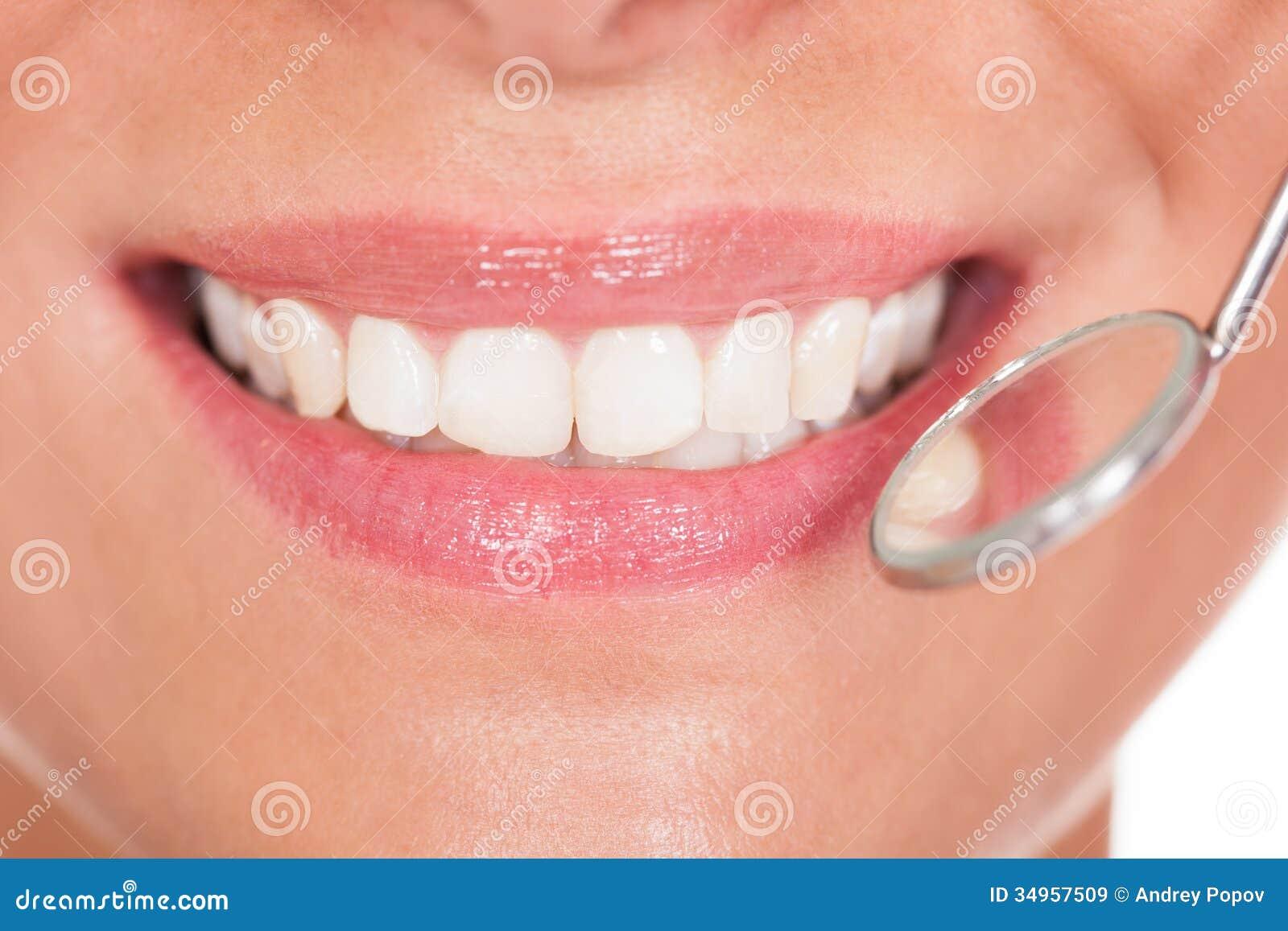 Χαμογελώντας γυναίκα με τα τέλεια άσπρα δόντια