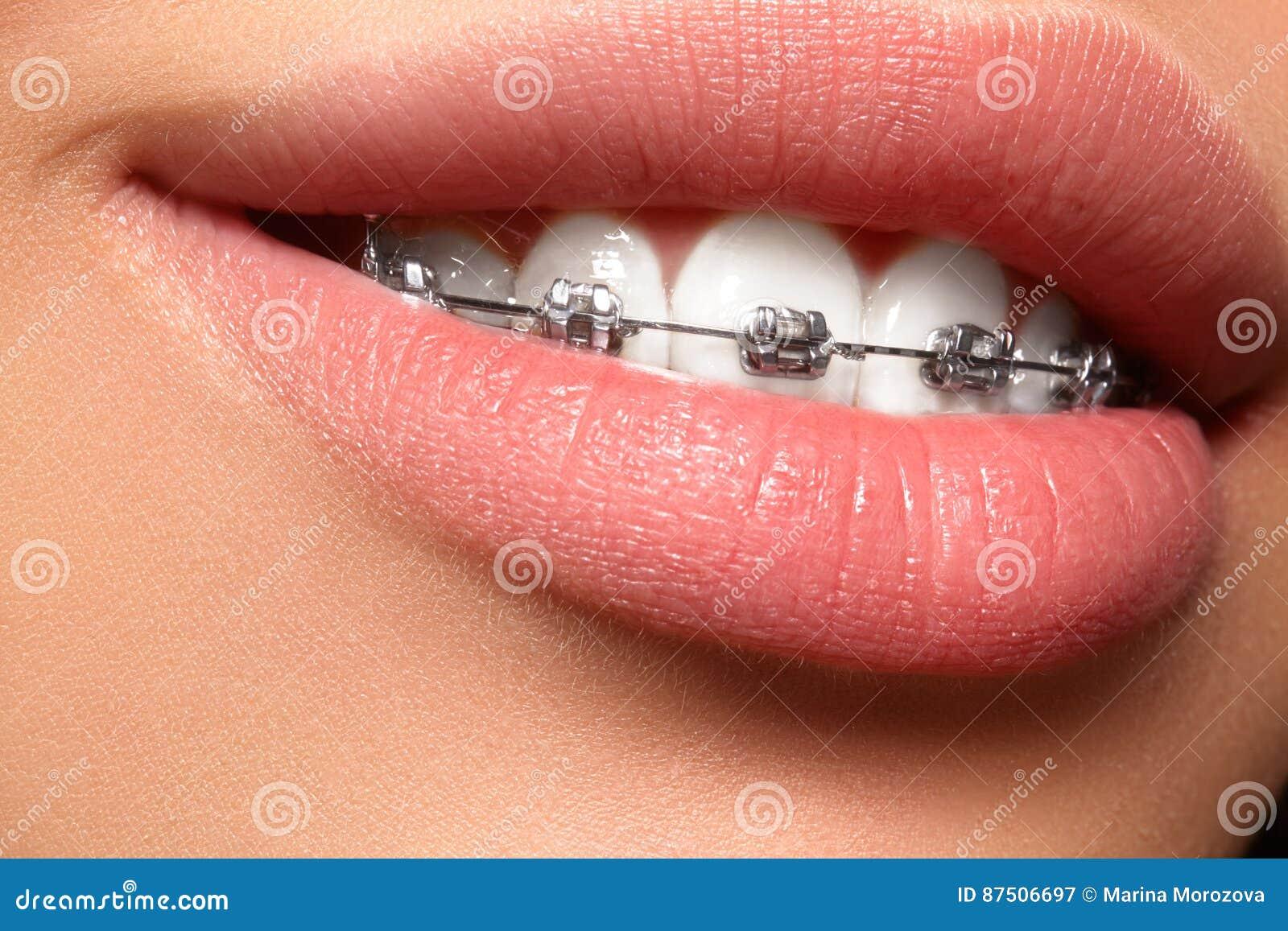 Όμορφα άσπρα δόντια με τα στηρίγματα Οδοντική φωτογραφία προσοχής Χαμόγελο γυναικών με τα ortodontic εξαρτήματα Orthodontics επεξ