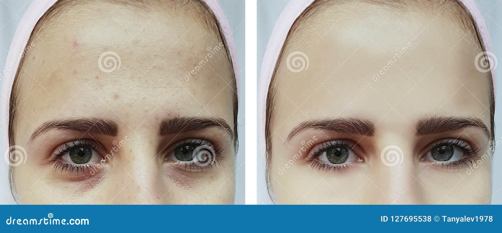Όμορφη ακμή νέων κοριτσιών, μώλωπες κάτω από τα μάτια πριν και μετά από τις διαδικασίες