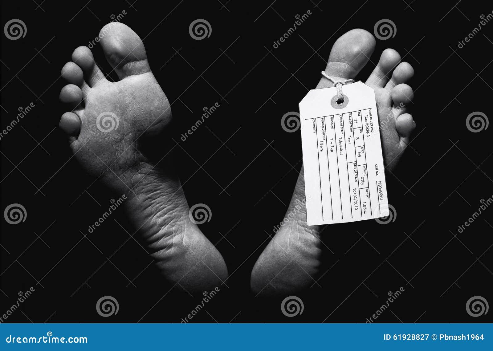 Бирка пальца ноги