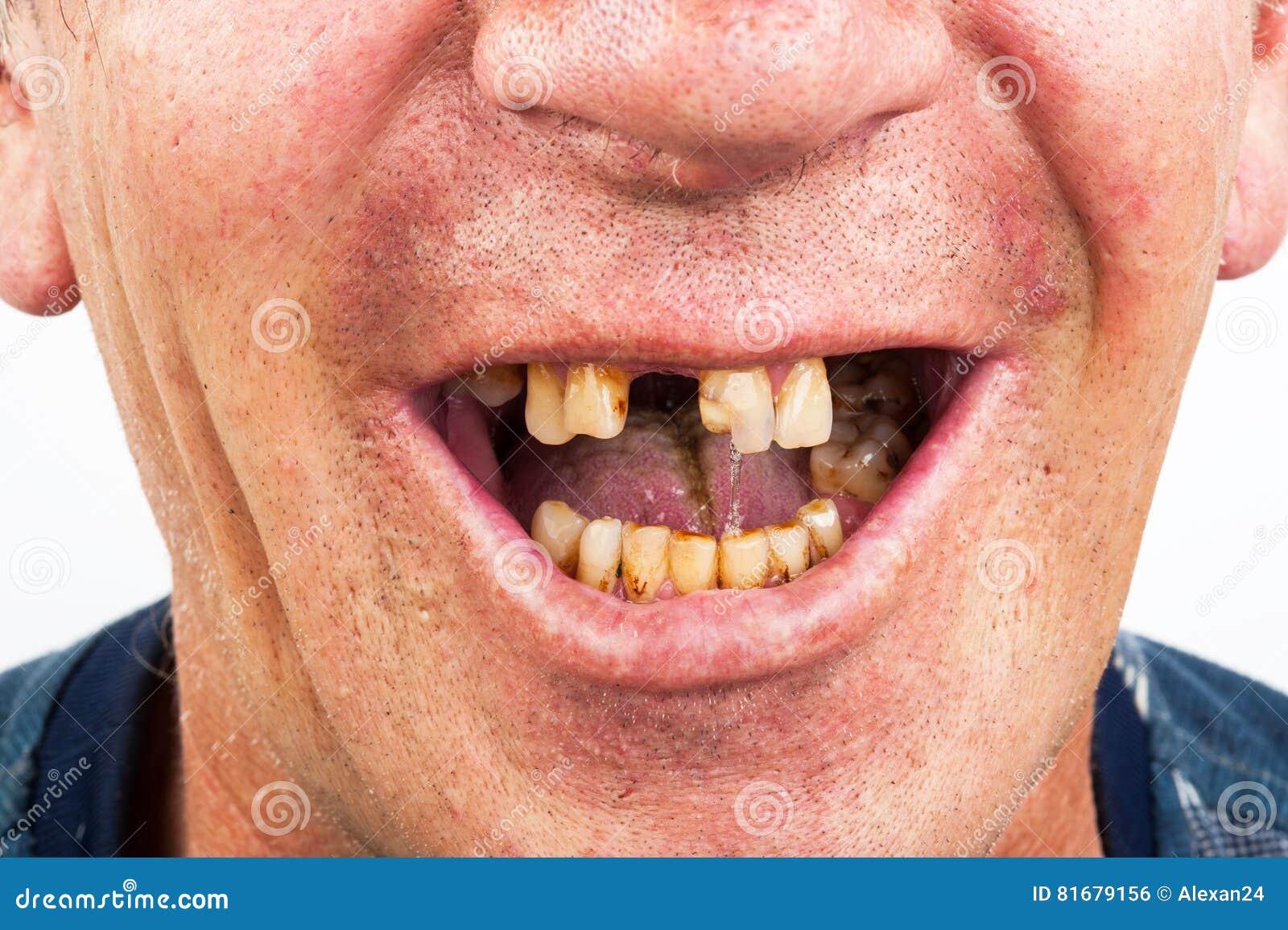 Больные зубы, курильщик
