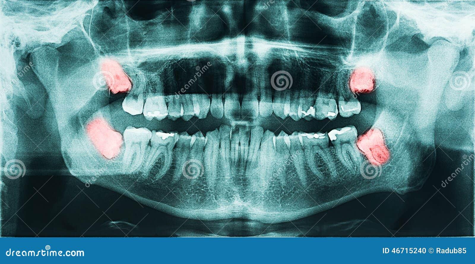 Боль зубов премудрости