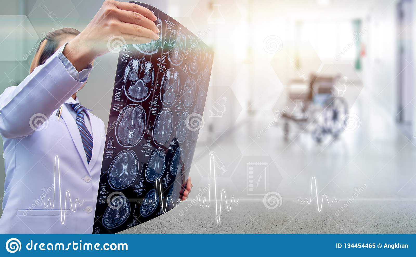 верхняя часть человеческого тела, изображения рентгеновского снимка высоты качественного человеческого внутри