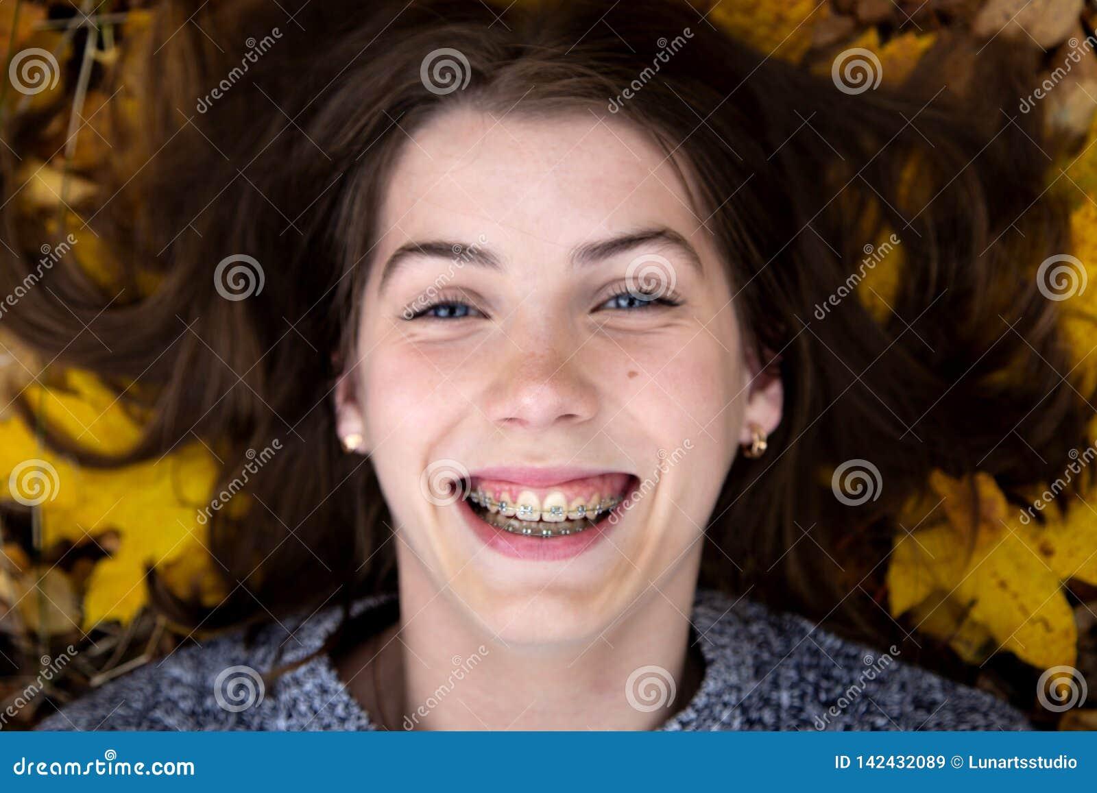 Взгляд сверху милой девушки с голубыми глазами с красивой улыбкой и расчалками на ее зубах, которые в лож осени на том основании