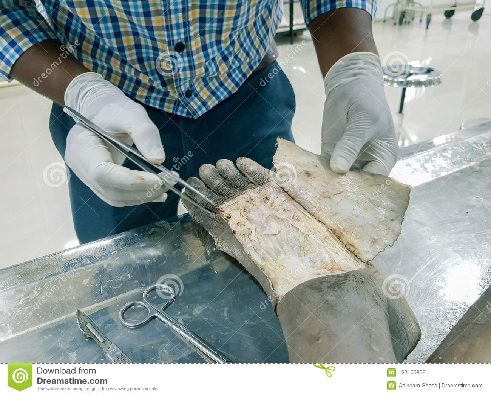 Взрезывание анатомии кадавра показывая dorsum ноги используя щиток кожи вырезывания ножниц и пинцета скальпеля показывая важный s