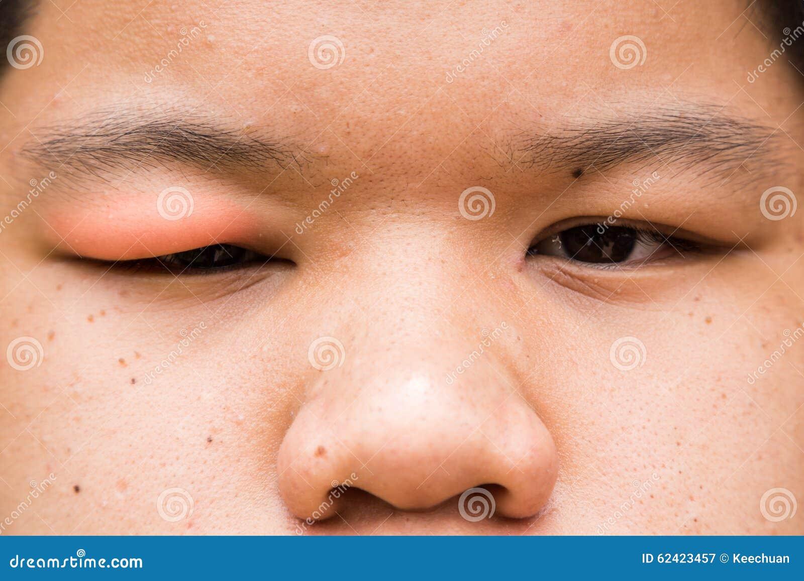 Вздутая красная верхняя крышка глаза с натиском инфекции хлева