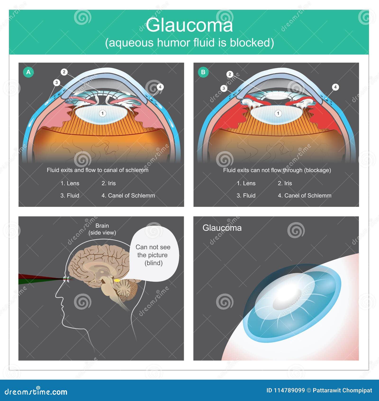 глаукома Выходы и подача водяного юмора жидкие к каналу глаз schlemm человеческих иллюстрация