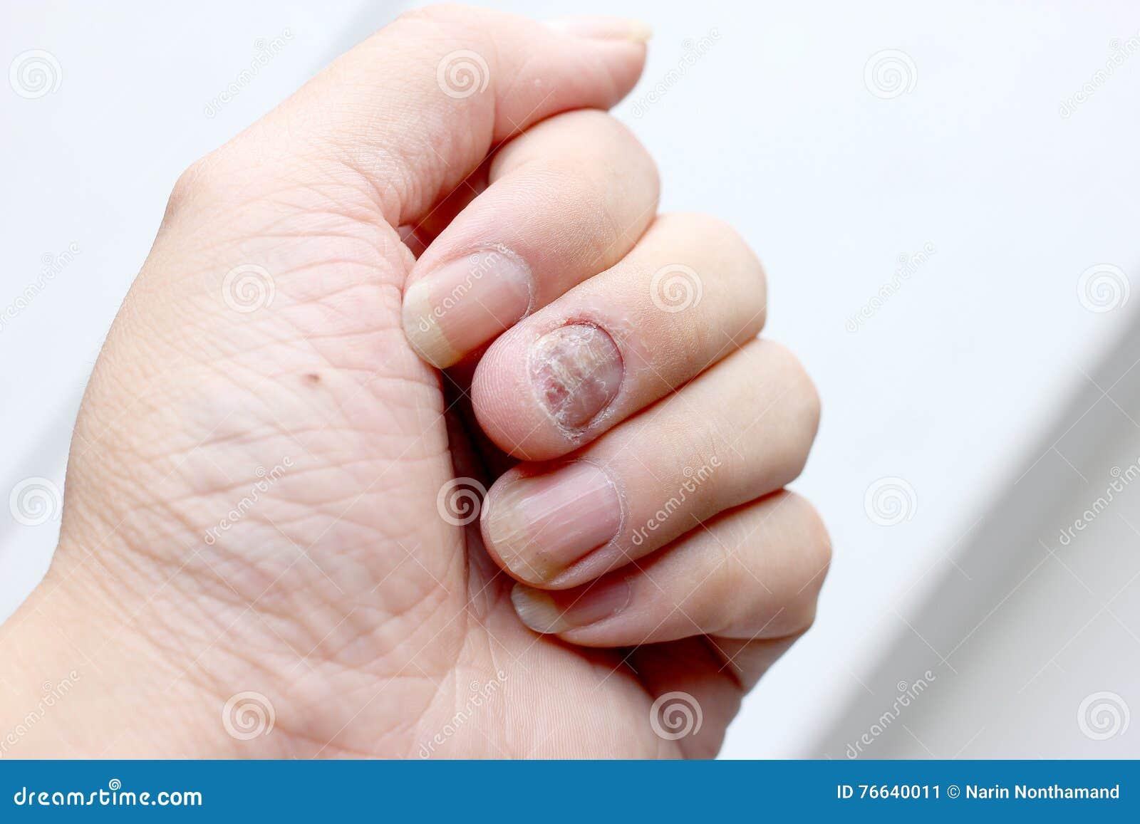Грибная инфекция на ногтях руке, пальце с onychomycosis - мягкий фокус