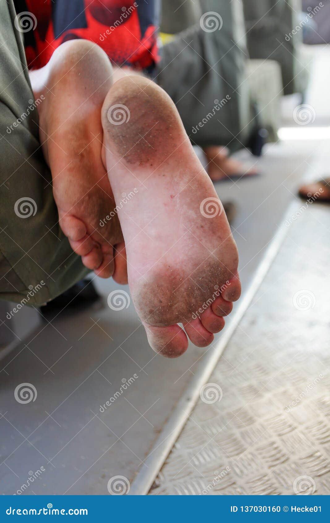 Грязные ноги и подошвы