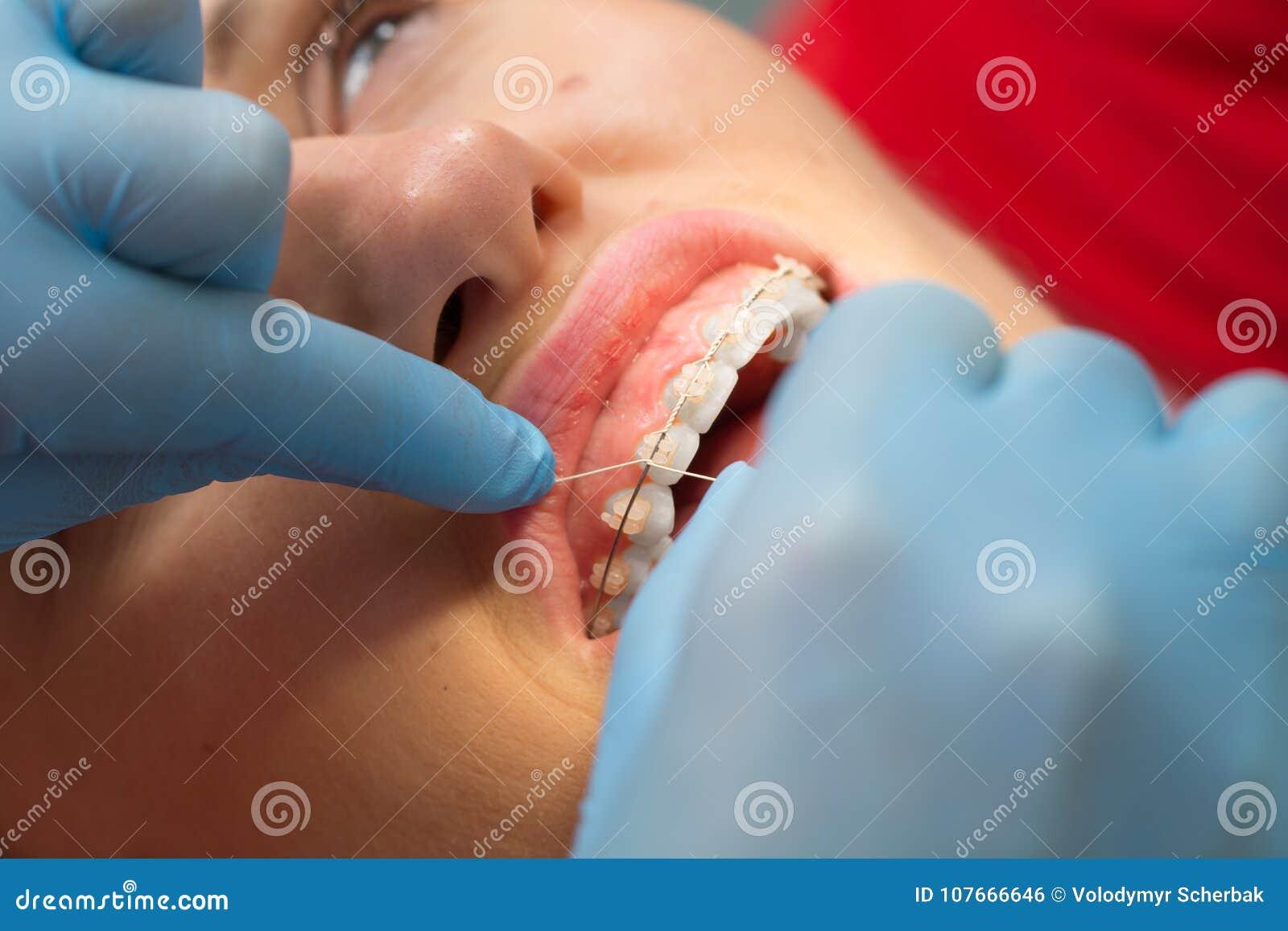 Дантист проверяя кронштейн на расчалках на женском пациенте Конец-вверх люди реальные