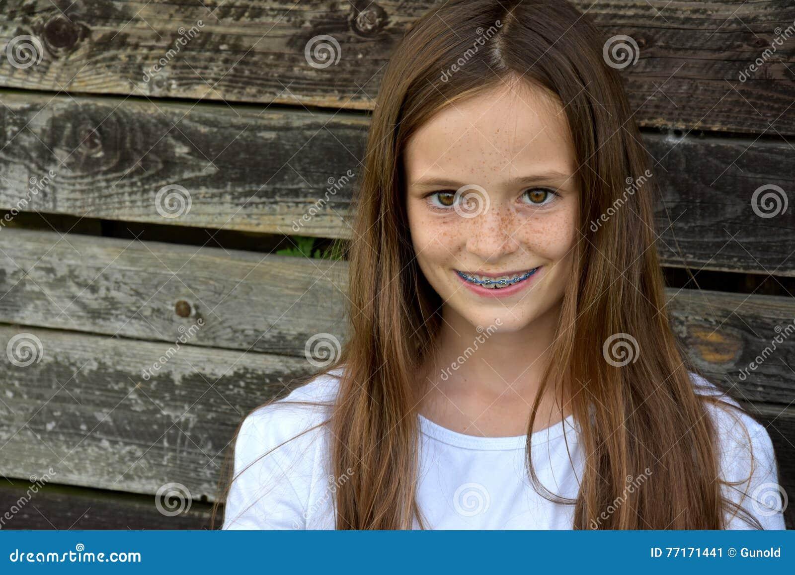 Девушка с зубоврачебными расчалками