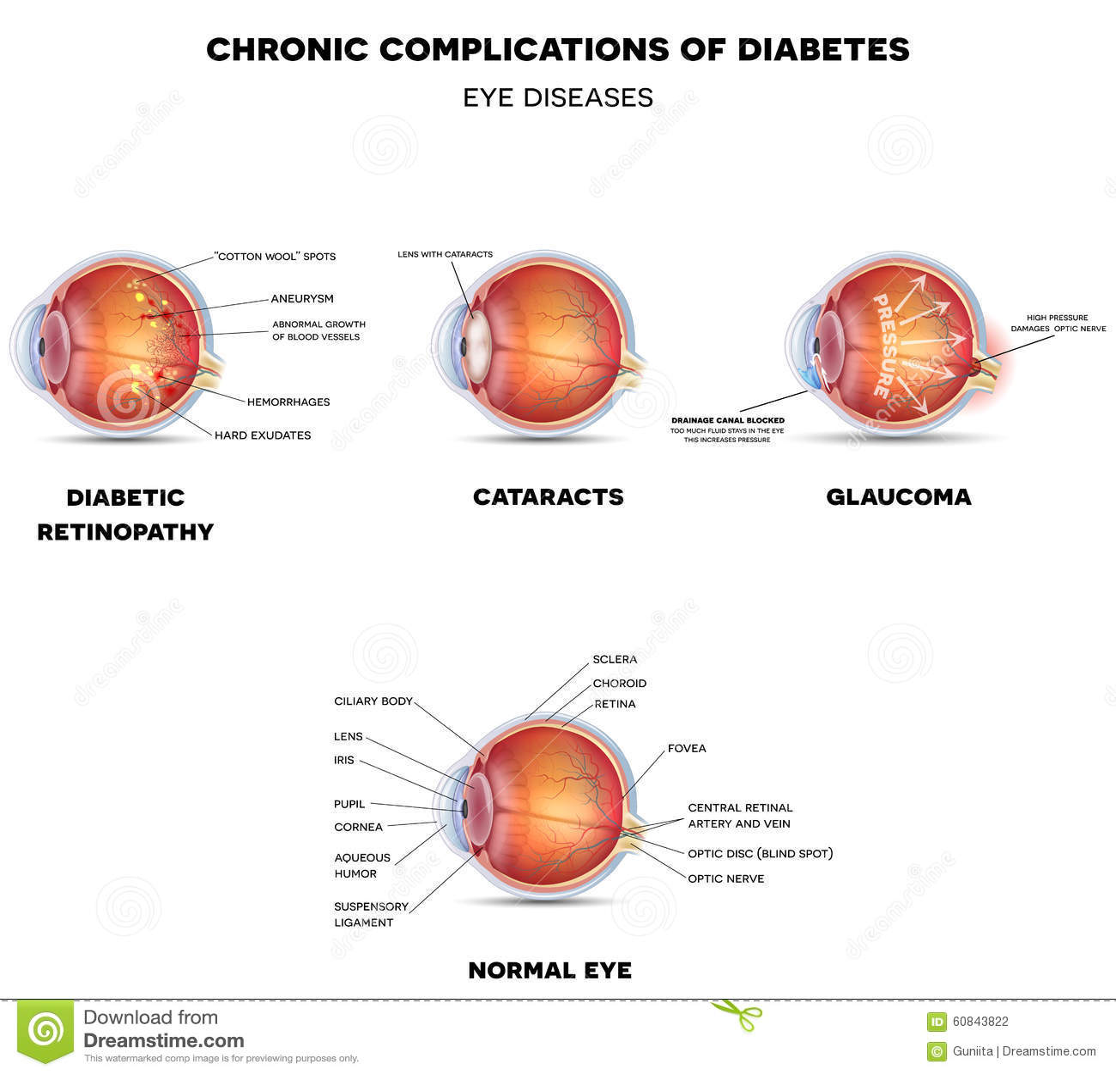 Диабетические заболевания глаза