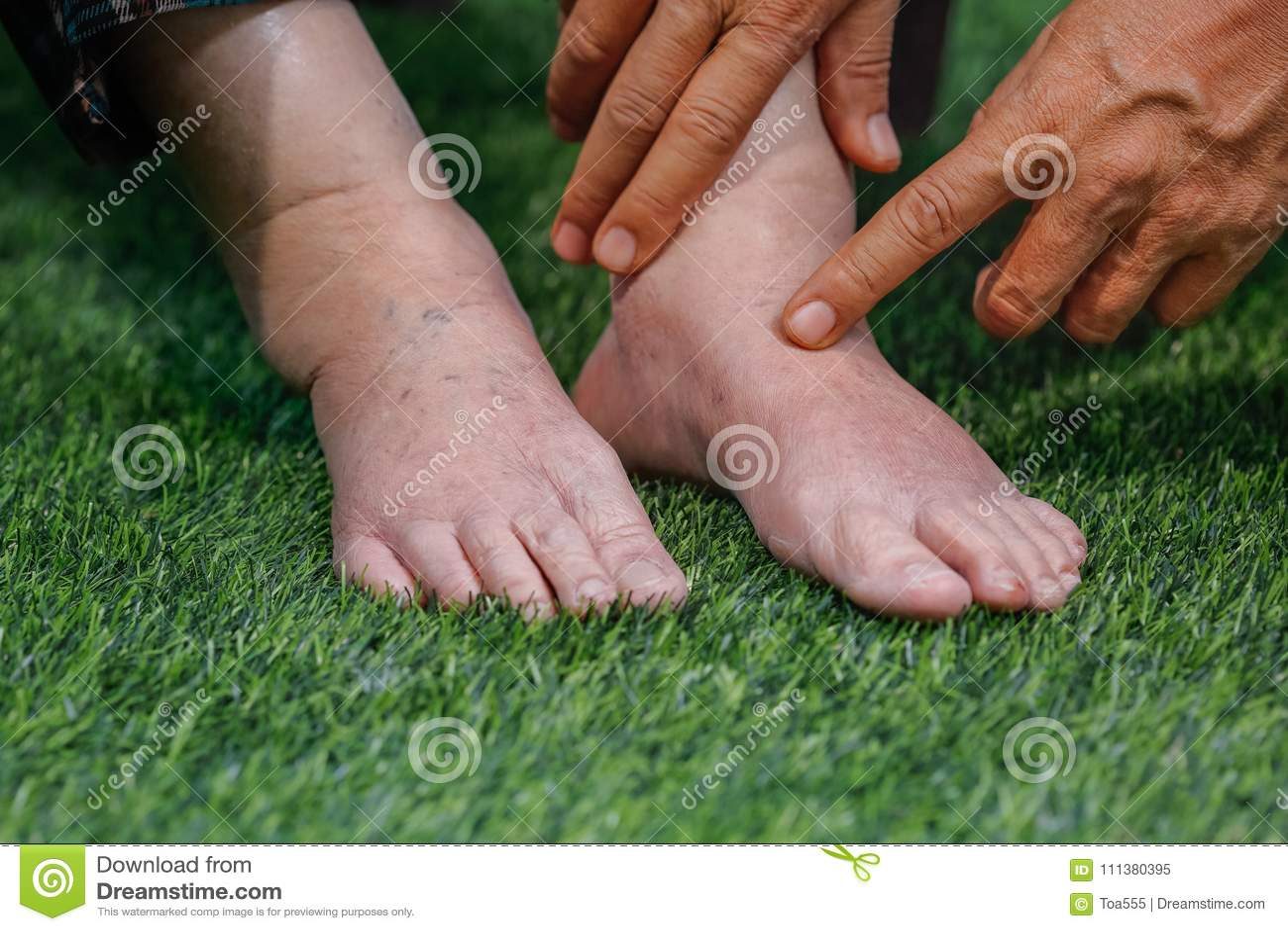 Доктор определяя пожилую опухнутую ногу