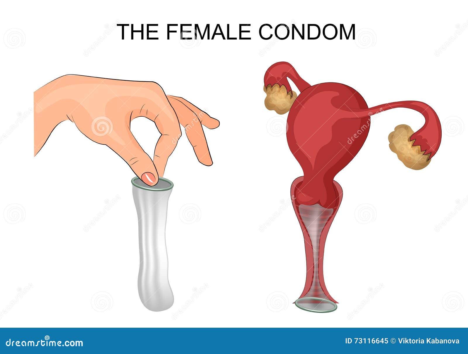 Женский презерватив во влагалище фото фото 366-481
