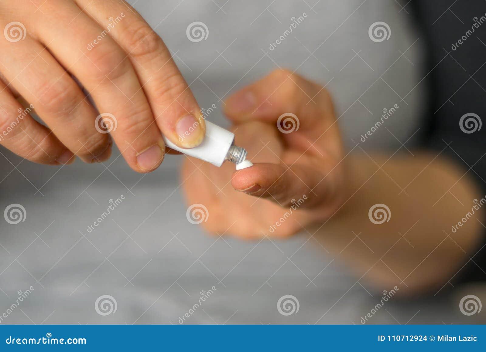 Женщина нажимает сливк от трубки на пальце