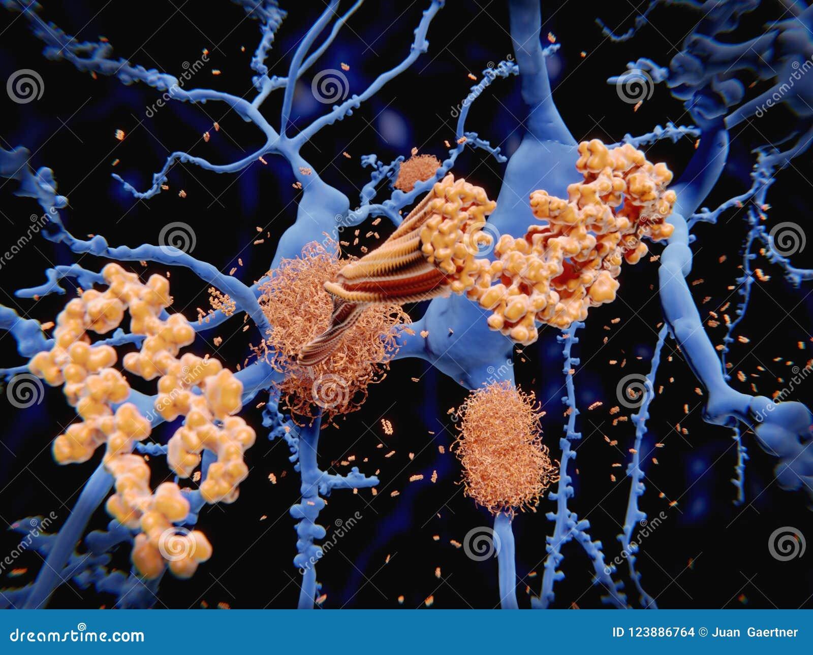 Заболевание ` s Alzheimer: амилоид-бета пептид аккумулирует к amy