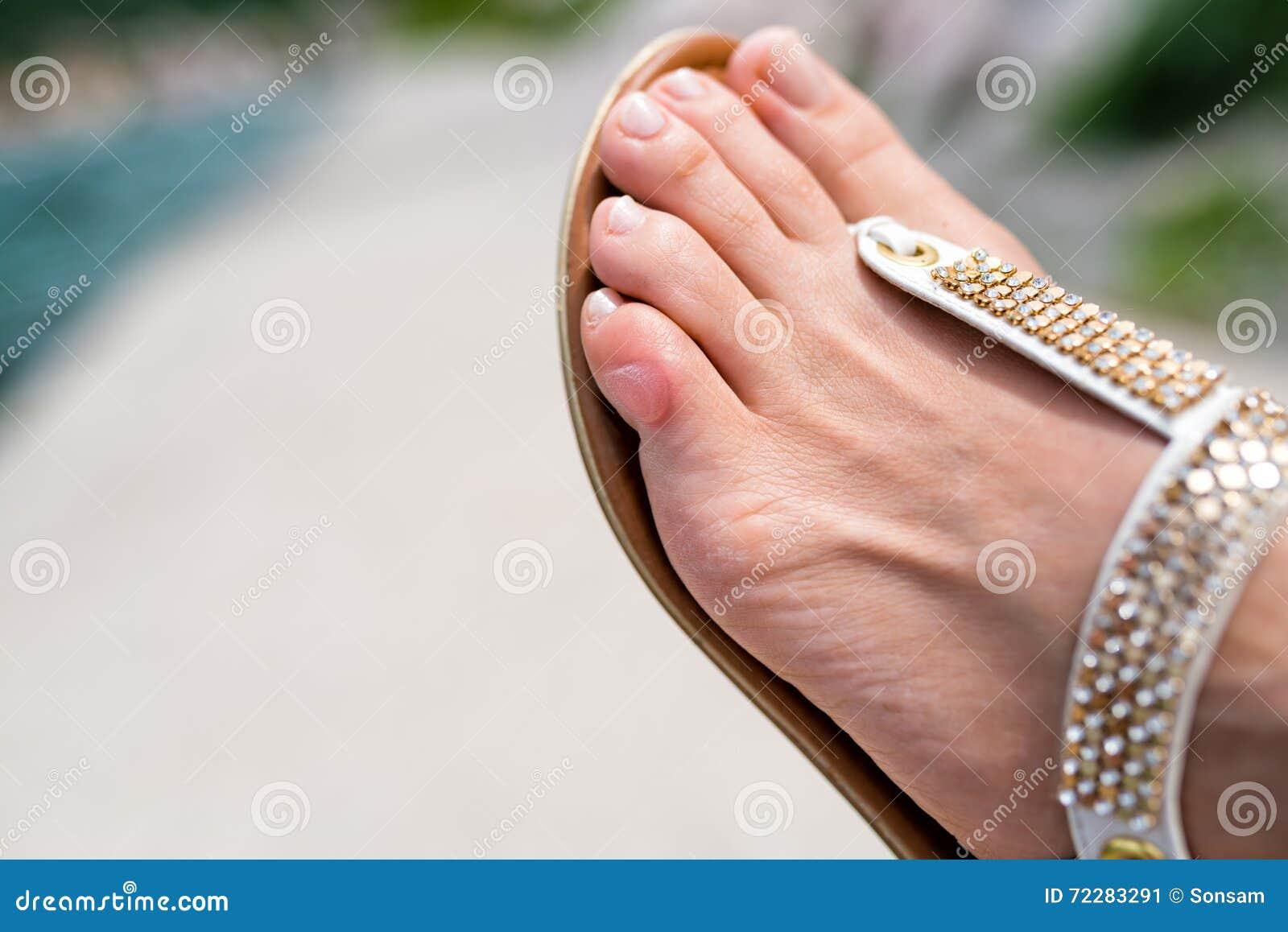 Download Закройте вверх пальца ноги человека с волдырем Стоковое Изображение - изображение насчитывающей причинено, треснуто: 72283291